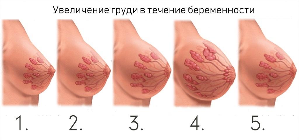 Изменения груди при беременности фото